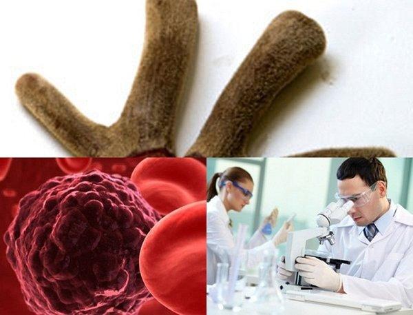 Tác dụng của nhung hươu với bệnh ung thư